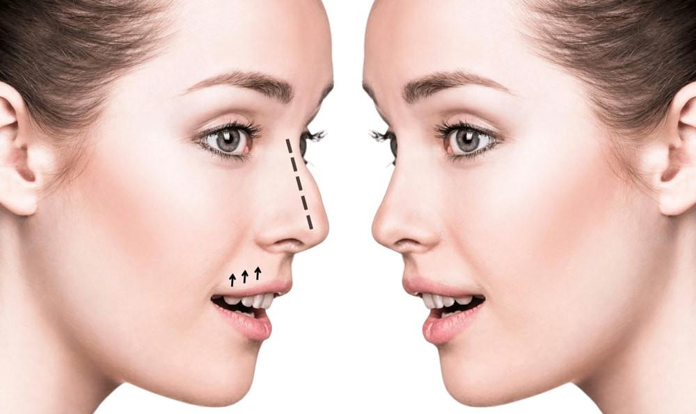 Nose Job Dubai Rhinoplasty Without Surgery