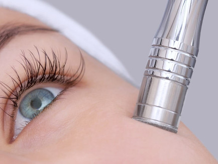 What to Know About Microdermabrasion - Wonders of Diamond Peeling