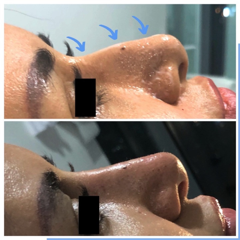 Before and After Nose Correction in Dubai Eden Derma Clinic