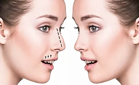 Nose Job Dubai Rhinoplasty Without Surgery