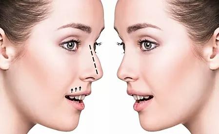 Rhinoplasty Without Surgery - 5 Minute Nose Job!