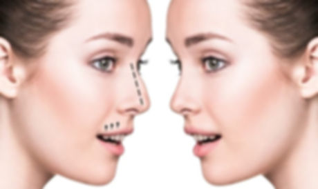 Nose Job Nose Correction Dubai | Eden Derma