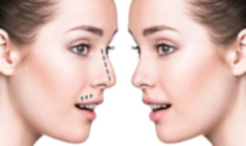 Nose Job Nose Correction Dubai | Eden Derma