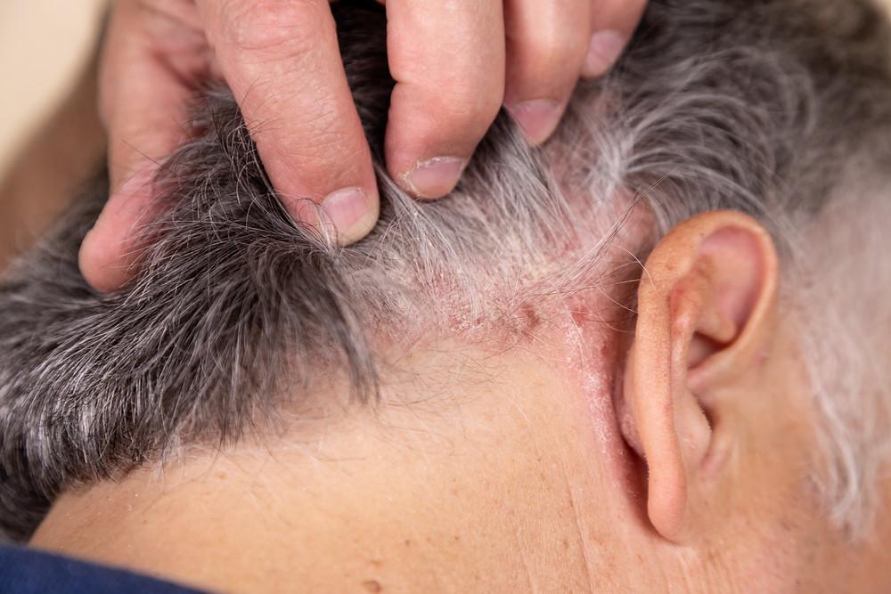 Ein älterer Mann mit seborrhoischem Ekzem im Bereich der Kopfhaut und hinter dem Ohr.