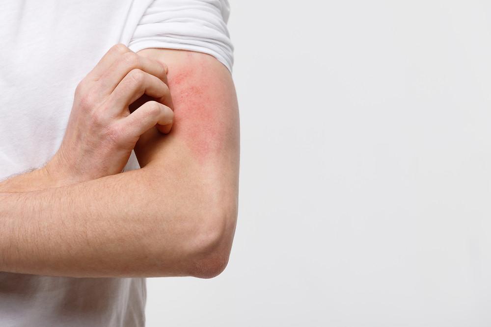 Eine Person, die sich am Oberarm kratzt und dadurch Lichen simplex chronicus verursacht.