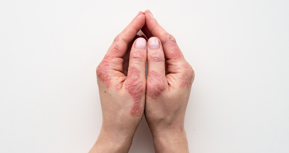 Hands with severe eczema.