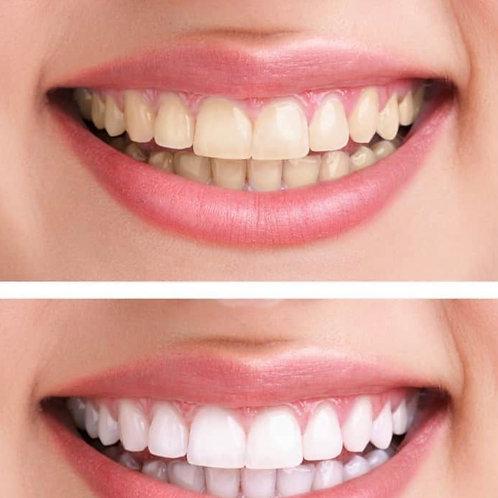 Teeth Whitening Treatment in studio