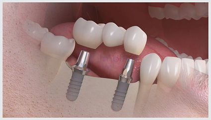 ponte_sobre_implante.jpg