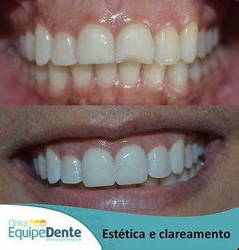Clareamento_e_Estética_2.png