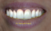 Sorriso Virtual