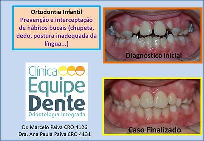 Ortodontia Infaltil Mordida Aberta Ana L