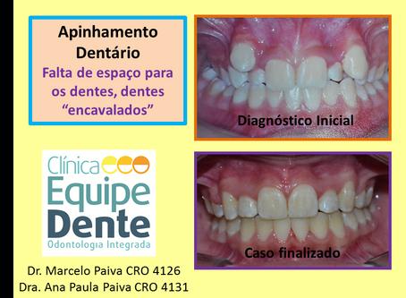 Apinhamento Dentário