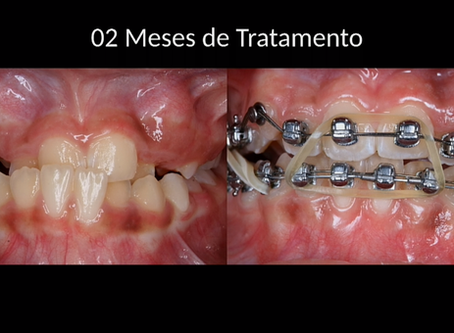 Ortodontia Autoligada (braquetes com 2 fios)