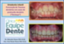 Ortodontia_Infaltil_Protrusao_Dentária_