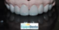 Lentes dentais prontas