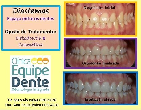 Diastemas.png