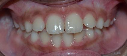 Dentição Mista