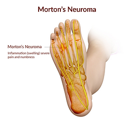 Mortons Neuroma Therapy