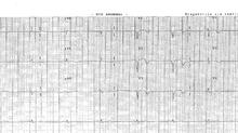 Casos ECG: Dolor torácico 1