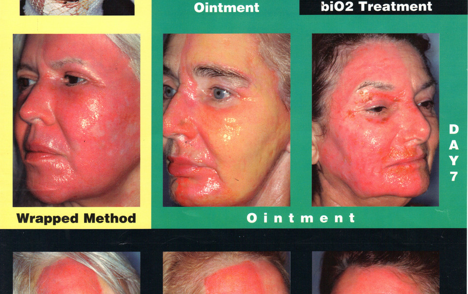 SY - Bio Ceutical Peel  Product Pics.JPG