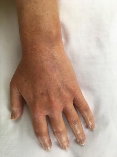 Bruises 9- 18 -2019  (5).JPG