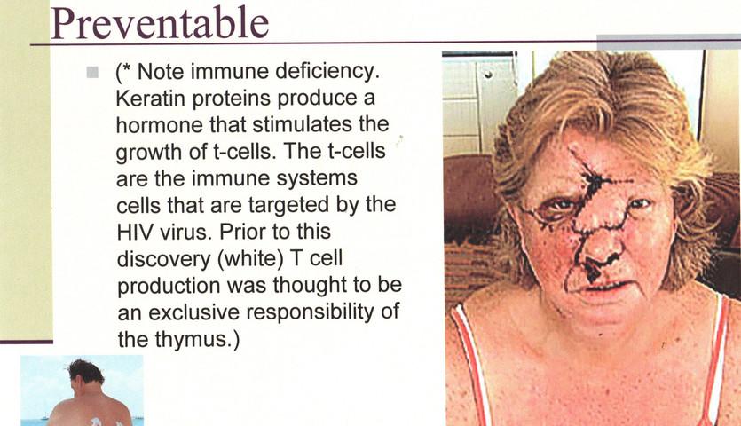 SY - Presentation -  EE - Skin Cancer (8