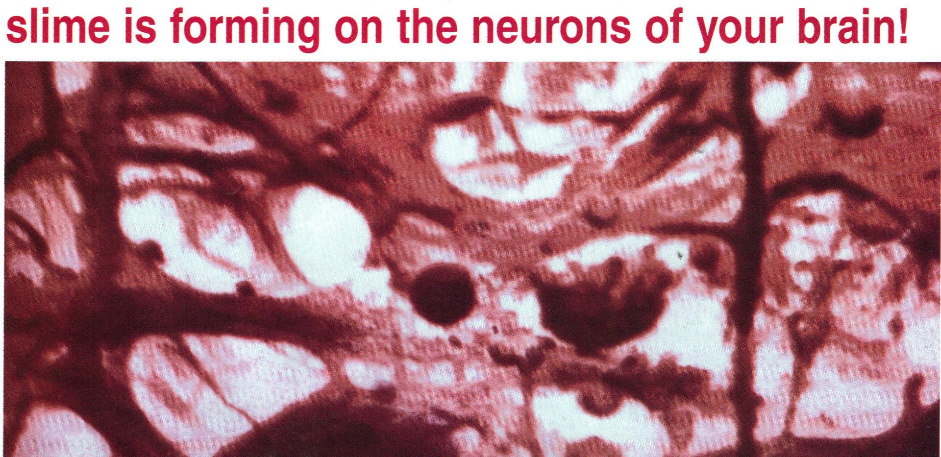 Sy - Brown Spots Brown Brain Slime.JPG