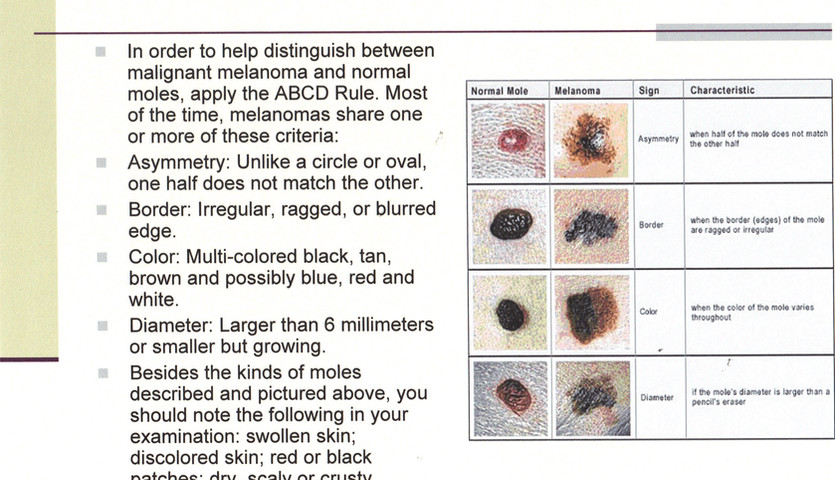 SY - Presentation -  EE - Mole vs Cancer