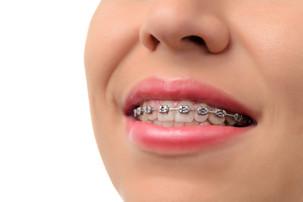 Ortodoncia Tradicional