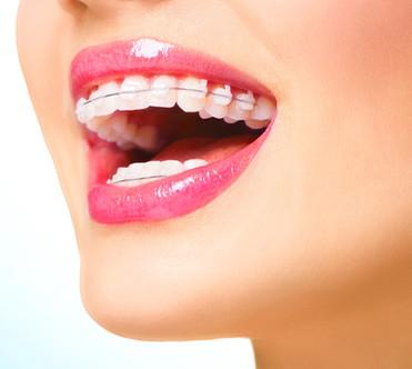 Ortodoncia Cristal de Zafiro