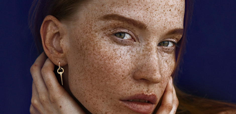 Freckes