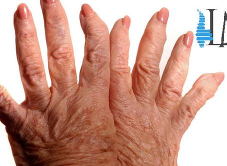 Artritis o Artrosis?