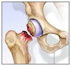 Fractura de Cadera, cirugía y rehabilitación