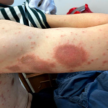 What  to do with recurrent eczema and neuro dermatitis?