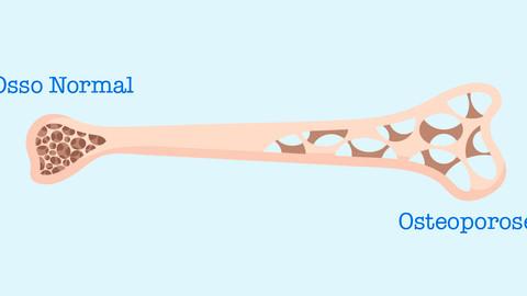 Dicas para o controle e prevenção da osteoporose