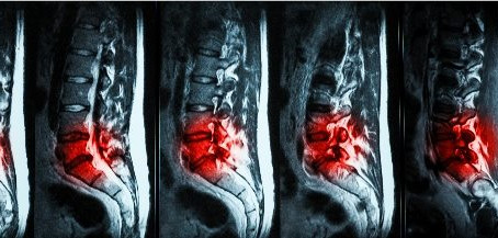 How back MRI results are misleading you