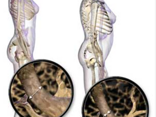 Learn The Art of Moving with Osteoporosis & Osteoarthritis