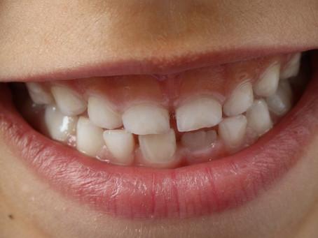 Mer bly och mindre mangan i tänderna hos autistiska barn