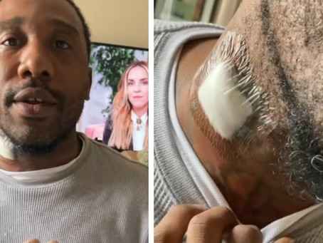 FRENCHIE BSM GOT SHOT IN THE NECK
