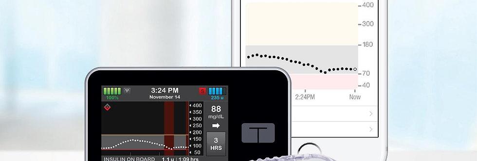T:Slim X2 Basal-Iq Insulin Pump 1 Ea Box