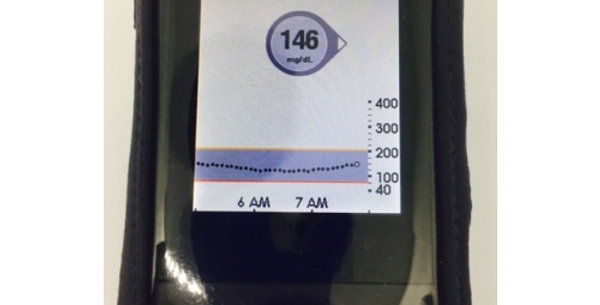 Dexcom Touchscreen Receiver