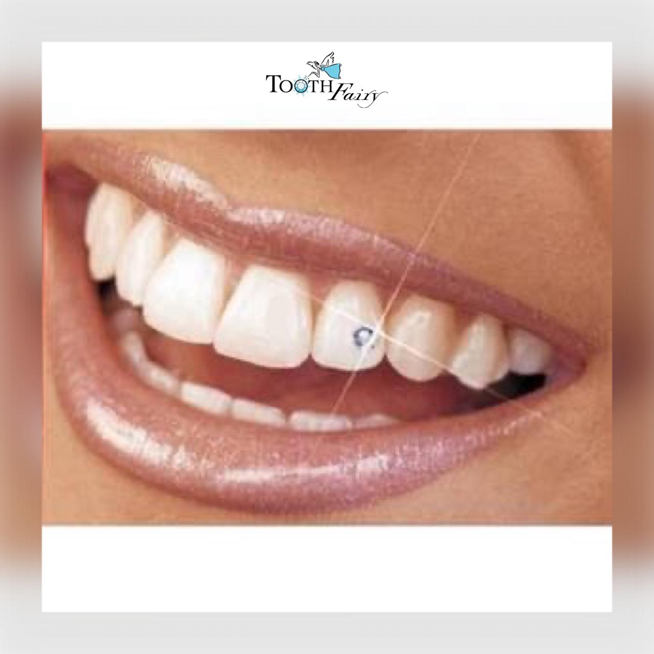 Diamands dentaires