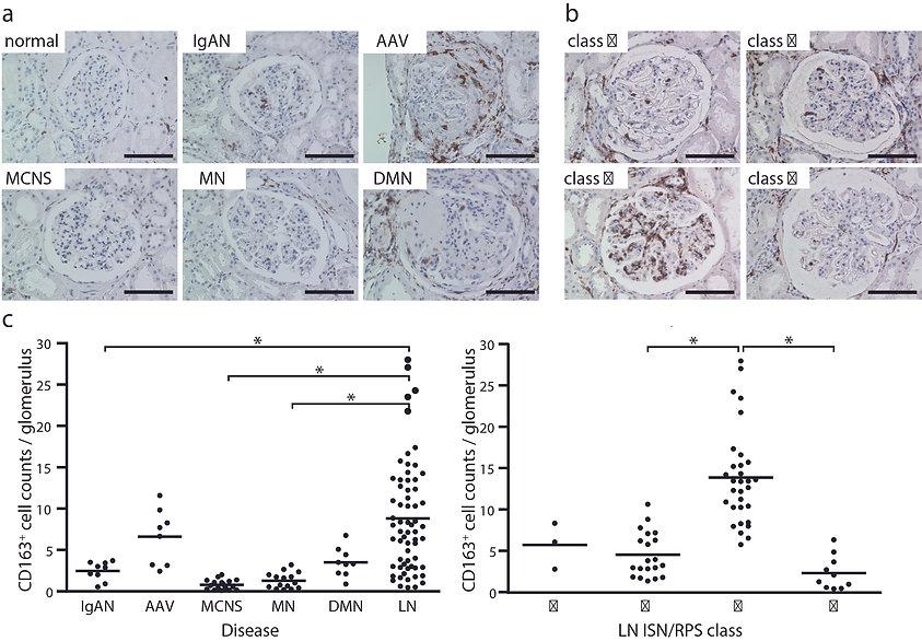 腎疾患における免疫調整性M2マクロファージの役割