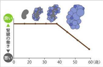 多発性嚢胞腎の病状の進行イメージ