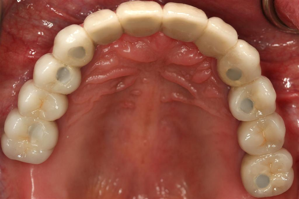 Full mouth reconstruction on implants