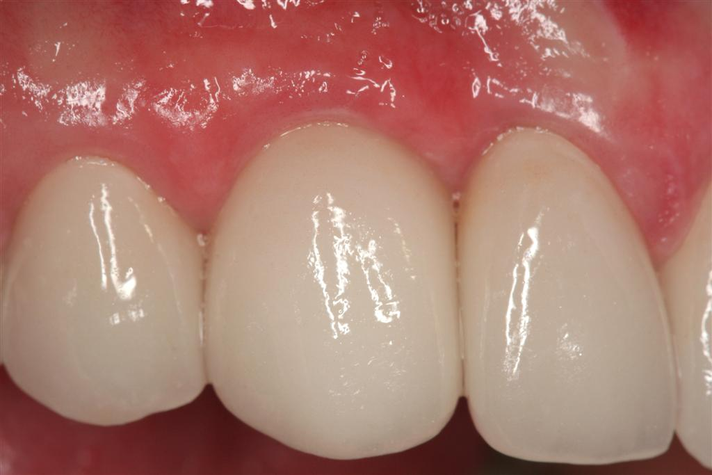 Single Implant Crown