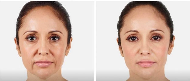 juvederm-before-and-after-westchester-pa