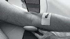 winshock-cryo-stim-trattamento-crioterap