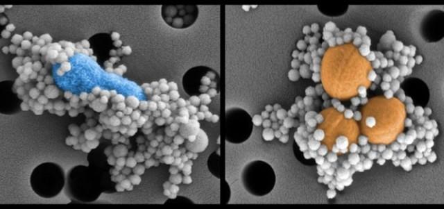 Source: http://d.ibtimes.co.uk/en/full/1399311/magnetic-nanobeads-binding-pathogens.jpg?w=720&h=301&l=50&t=40