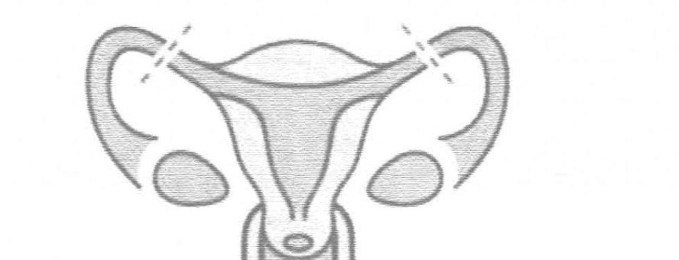 sterilisation-940x360.jpg